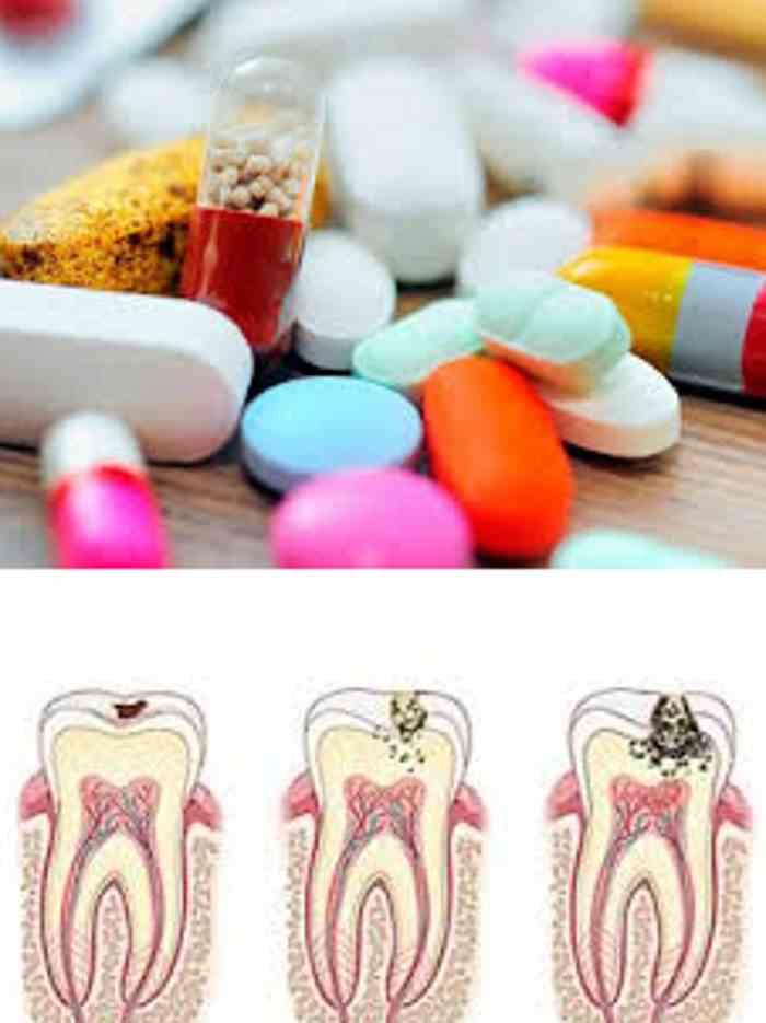 Таблетки против кариеса