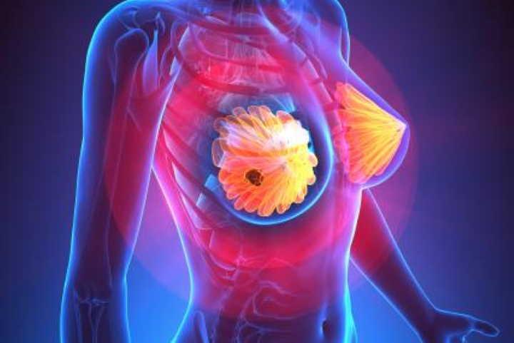 Как проводят лечение рака груди в Германии?
